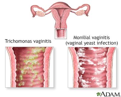 vaginal itching, Skeleton
