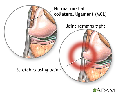 lateral collateral ligament (lcl) injury, Human Body